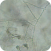 Rhizoctonia solani hyphae magnified 160X