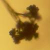 Botrytis cinerea conidiophore magnified 40X